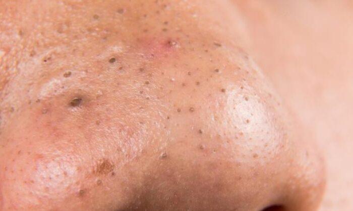 नाक में होने वाली काली कीलो से है परेशान तो अपनाए कुछ घरेलु उपचार ( blackheads problems )