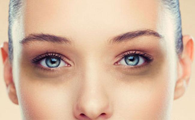 जानिए आँखों के काले घेरे और धब्बे को कैसे हटाए ( remove darkcircle )