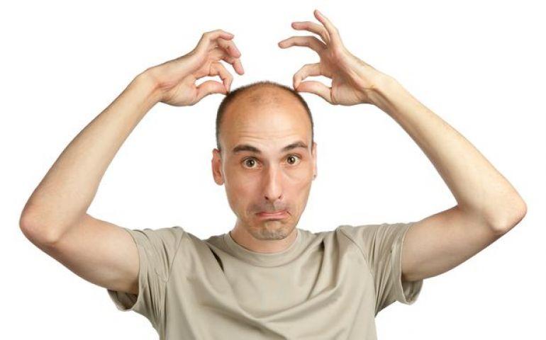 baldness_57a3ba4800f2b