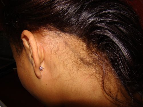 18-afro-american-hair-loss-before