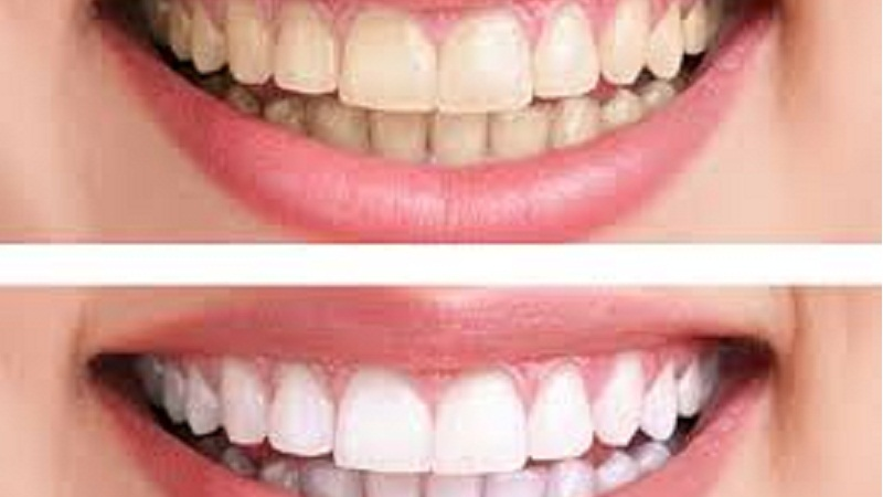 best-teeth-whitening-method