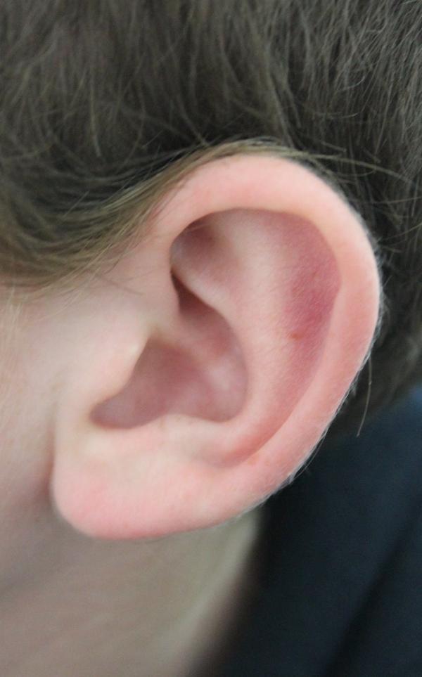 कान मोटे