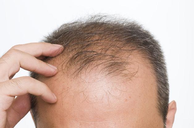 झड़ते बालो को रोकने के लिए करे ये 7 घरेलु उपचार ( these seven home remedies for hairfall )