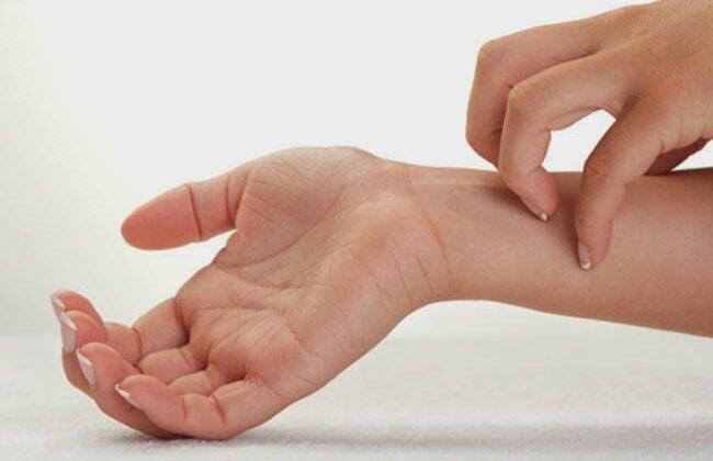 अंगो में खुजली होने का क्या मतलब हो सकता है जाने ( mean by organ itching )