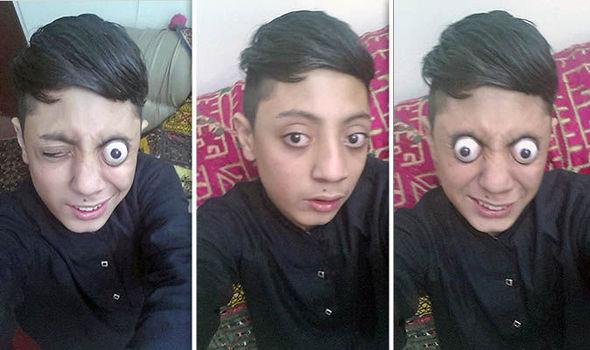 अपनी दोनों आँखे बाहर निकाल रोंगटे खड़े कर देता हैं ये शख्स, वीडियो देखें ( viral video pakistani boy ahmad khan pops his eyes )