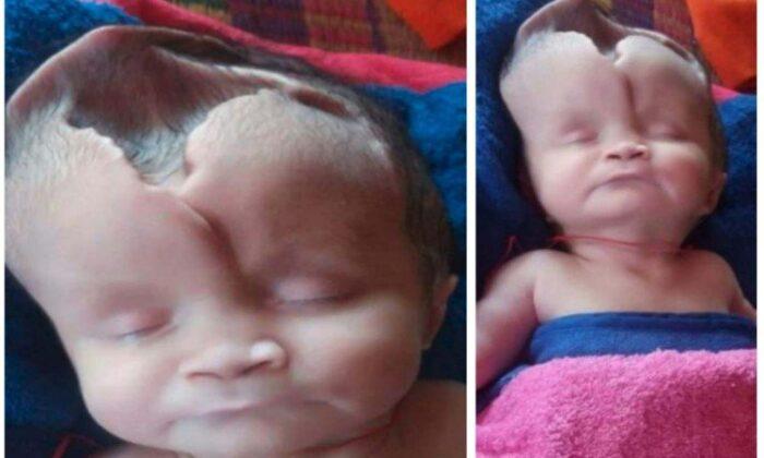 जन्मी बिना खोपड़ी की बच्ची, सिर पर है गहरा गड्ढा ( skull less baby girl born in cambodia )